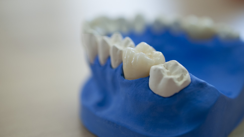 Dentaltechnik Fulda Dentallabor Moeser Zahnärzte
